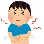 皮膚の赤い湿疹!痒くないのはストレスも原因?効果的な市販薬は?